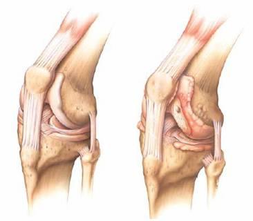 Artrose Slijtage Van Het Kniegewricht Rijnland Orthopaedie