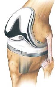 Protocol halve knieprothese