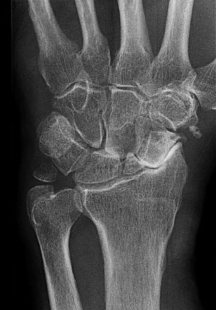 bot artrose