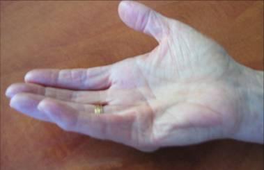 pijnlijke gewrichten vingers