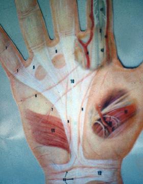 Orthopedie betekenis