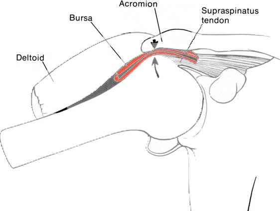 Subacromiaal Pijnsyndroom Impingement Rijnland Orthopaedie