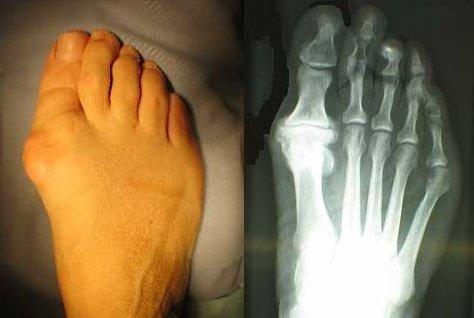 artrose voet operatie